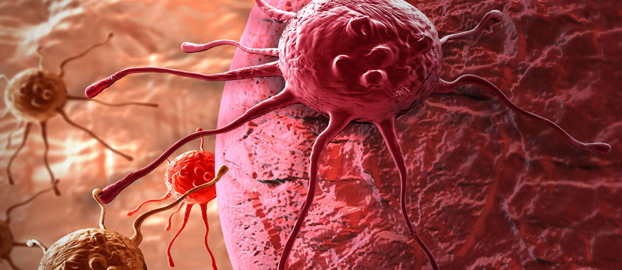 New technology to trap cancer cells on the move